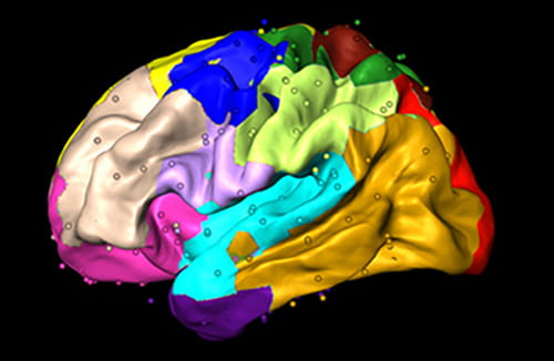 A colorful image showing sections of the brain